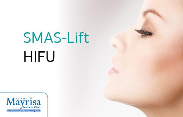 SMAS-Lift HIFU ที่ Mayrisa clinic